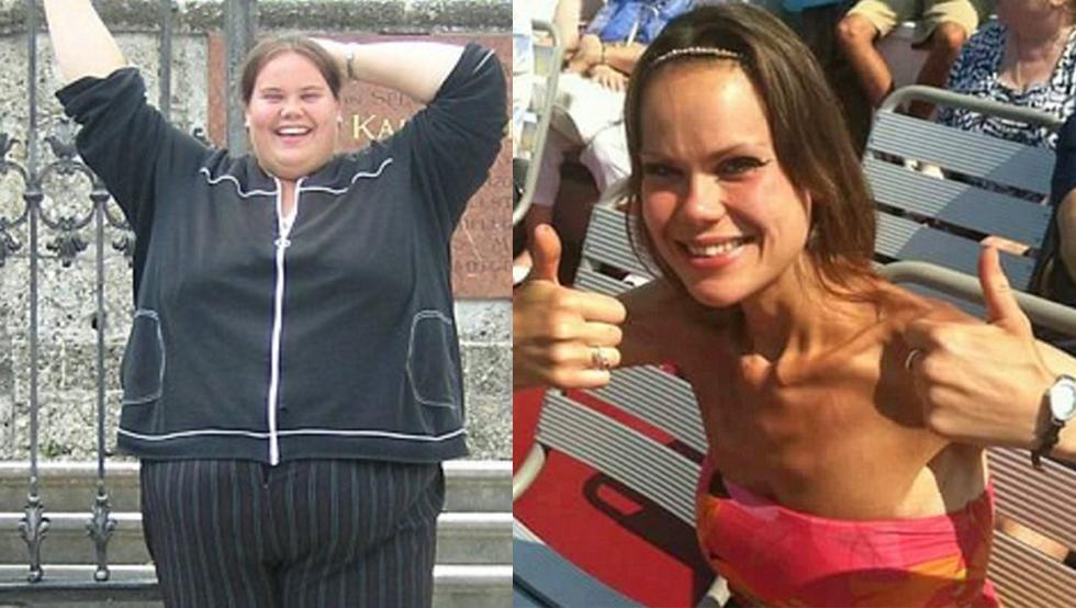 cirugía bariátrica en joven es con obesidad mórbida